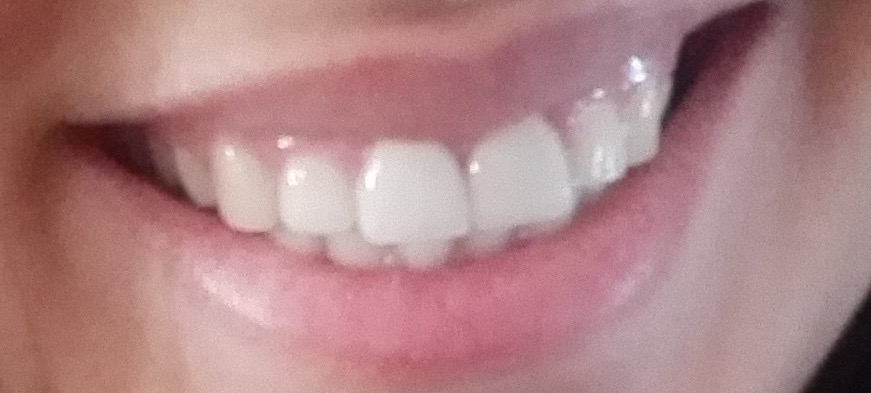 Dentífrico diferente